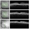Hypotony maculopathy captured with vertical rasters on optical coherence tomography (OCT) imaging