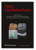 An en face swept source optical coherence tomography study of the vitreous in eyes with anterior uveitis