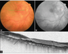 A middle hyper-reflective band on spectral domain optical coherence tomography in a case of acute nonarteritic central retinal artery occlusion with sparing of cilioretinal artery