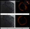 Pre-Emptive OCT-Guided Angioplasty of Vulnerable Intermediate Coronary Lesions: Results from the Prematurely Halted PECTUS-Trial