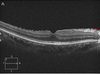 Influence of Epiretinal Membranes on the Retinal Nerve Fiber Layer Thickness Measured by Spectral Domain Optical Coherence Tomography in Glaucoma