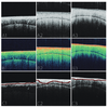 Comparative evaluation of the spectral-domain optical coherence tomography and microhardness for remineralization of enamel caries lesions