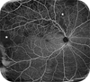 Phenotyping of retinal neovascularization in ischemic retinal vein occlusion using wide field OCT angiography