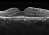 Quantifying microstructural changes in retinitis pigmentosa using spectral domain – optical coherence tomography