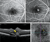 Diagnostic algorithm utilising multimodal imaging including optical coherence tomography angiography for the detection of myopic choroidal neovascularisation