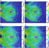 Influence of Clinical Factors and Magnification Correction on Normal Thickness Profiles of Macular Retinal Layers Using Optical Coherence Tomography