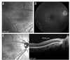 Widefield optical coherence tomography of foveal dragging in retinopathy of prematurity