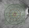 Topographic correlation between multifocal electroretinography, microperimetry, and spectral-domain optical coherence tomography of the macula in patients with birdshot chorioretinopathy