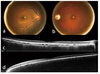 Choroidal alterations of Sturge-Weber syndrome secondary glaucoma and non-glaucoma port-wine stain patients distinguished by enhanced depth imaging optical coherence tomography