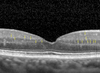 OCT Hyperreflective Retinal Foci in Diabetic Retinopathy: A Semi-Automatic Detection Comparative Study