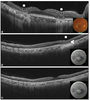 Outer retinal tubulation and inner retinal pseudocysts in a patient with maternally inherited diabetes and deafness evaluated with optical coherence tomography angiogram