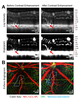 High-resolution, depth-resolved vascular leakage measurements using contrast-enhanced, correlation-gated optical coherence tomography in mice