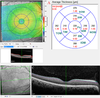 Segmental inner macular layer analysis with spectral-domain optical coherence tomography for early detection of normal tension glaucoma