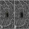 Results of Optical Coherence Tomography Angiography and Visual Acuity Under Varying Contrast and Luminance Conditions