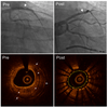 In-Stent Restenosis Lesion Morphology Related to Repeat Stenting Underexpansion as Evaluated by Optical Coherence Tomography