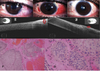 AS-OCT Guided Treatment Of Diffuse Conjunctival Squamous Cell Carcinoma With Resection ...