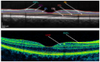 Reliability of Intra-Retinal Layer Thickness Estimates