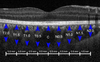 Assessment of Choroidal Thickness Inside and Outside of Vascular Arcade in Diabetic Retinopathy Eyes Using Spectral-Domain Optical Coherence Tomography