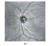 Optical Coherence Tomography Imaging of the Lamina Cribrosa: Structural Biomarkers in Nonglaucomatous Diseases