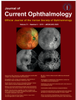 Effect of night work on image quality of optical coherence tomography angiography