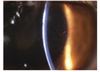In Vivo Confocal Microscopy and Anterior Segment Optical Coherence Tomography Analysis of the Microcystic Keratitis