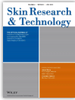 """Comparative """"virtual biopsies"""" of normal skin and skin lesions using vibrational optical coherence tomography"""