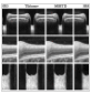 DN-GAN: Denoising generative adversarial networks for speckle noise reduction in optical coherence tomography images