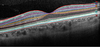 Analysis of inner and outer retinal layers using spectral domain optical coherence tomography ...