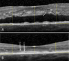 Correlation between redefined optical coherence tomography parameters and best-corrected visual acuity in non-resolving central serous chorioretinopathy treated with half-dose photodynamic therapy