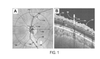 Optical Coherence Tomography Glaucoma Detection Based On Retinal Vessel Relief Height