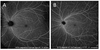 Standardization of optical coherence tomography angiography nomenclature in retinal vascular diseases: first survey results