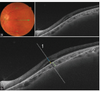 Swept-source optical coherence tomography angiography of choroidal neovascularization in vertically oriented oval dome-shaped maculopathy