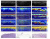 Differentiation of breast tissue types for surgical margin assessment using machine learning and polarization-sensitive optical coherence tomography