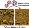 Optical monitoring of adipose tissue destruction under encapsulated lipase action