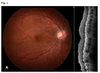Post-operative optical coherence tomography angiography features of chorioretinal folds resulting from pleomorphic adenoma of the lacrimal gland (PALG) of orbit- a case report