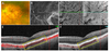 En-face OCT and OCT angiography analysis of macular choroidal macrovessel