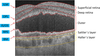 Comparing imaging capabilities of spectral domain and swept source optical coherence tomography angiography in healthy subjects and central serous retinopathy