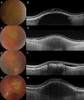 Enhanced Depth Imaging Optical Coherence Tomography of Choroidal Nevus in 104 Cases